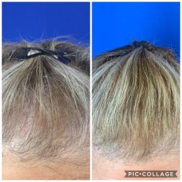 You see new hair growth with a noticeably fuller appearance even after just one treatment.  Photos are 6 weeks after 1st session.